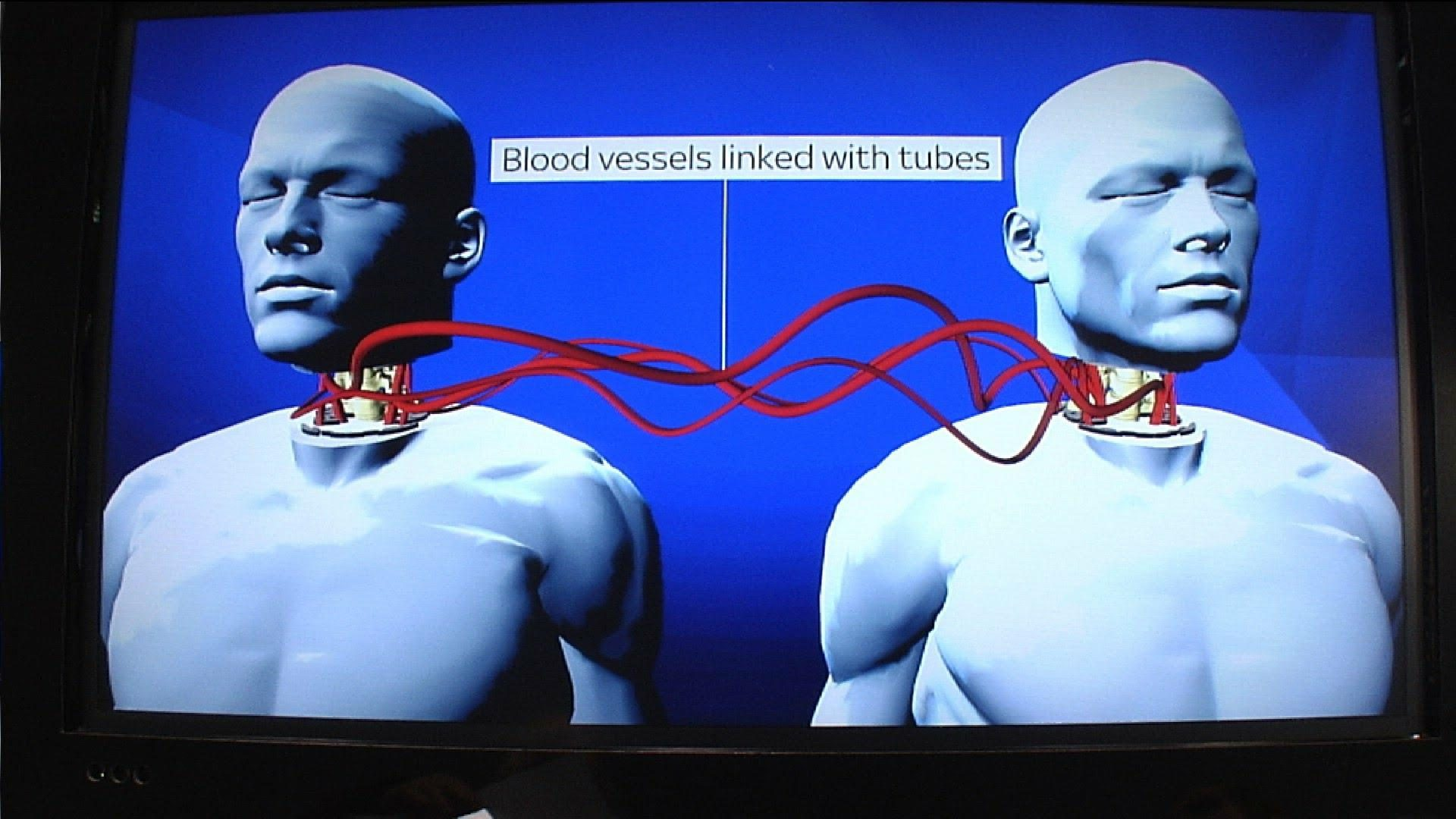 Image result for The World's First Human Head Transplant Has Been Successfully Carried Out